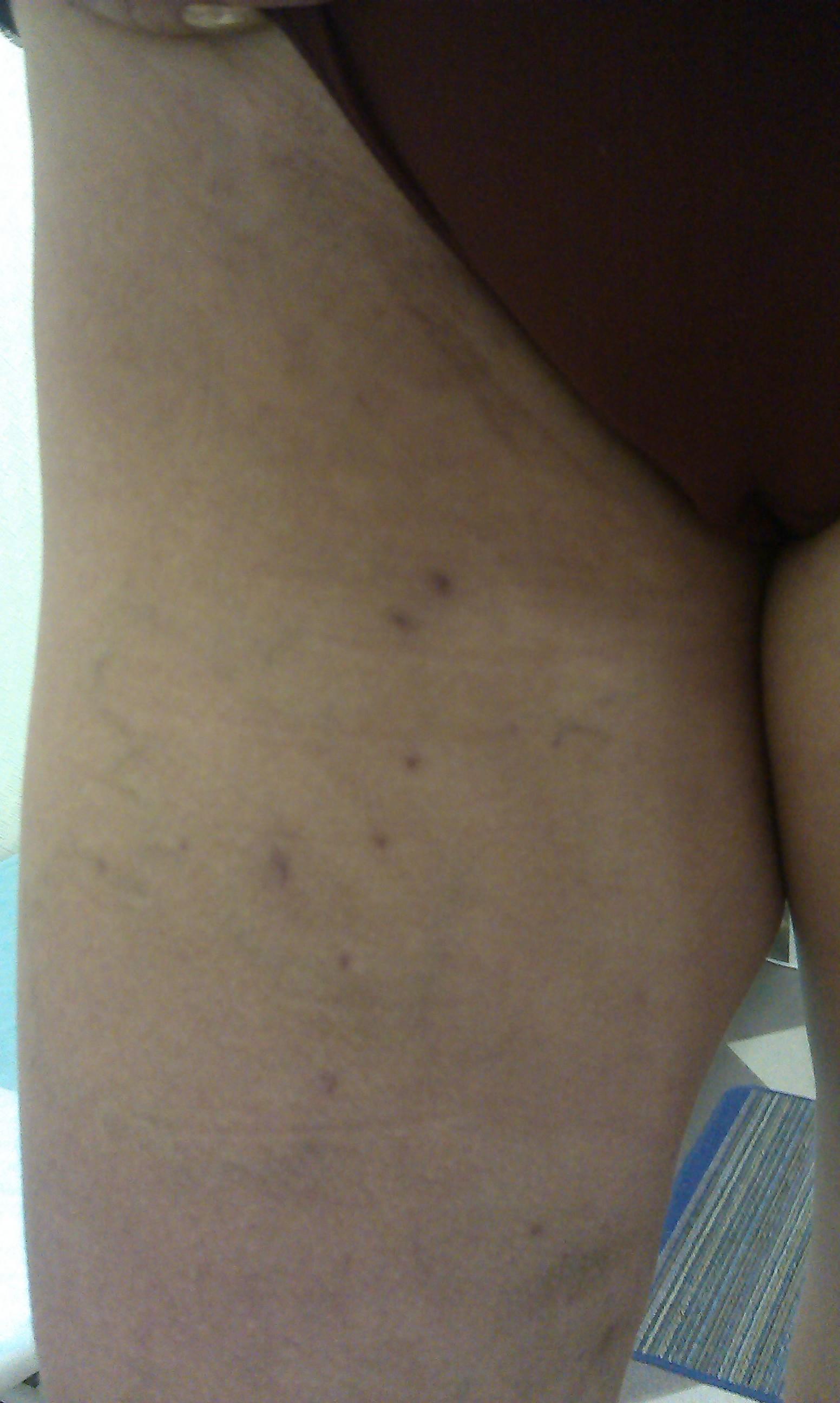 Клинические рекомендации по лечению тромбофлебита